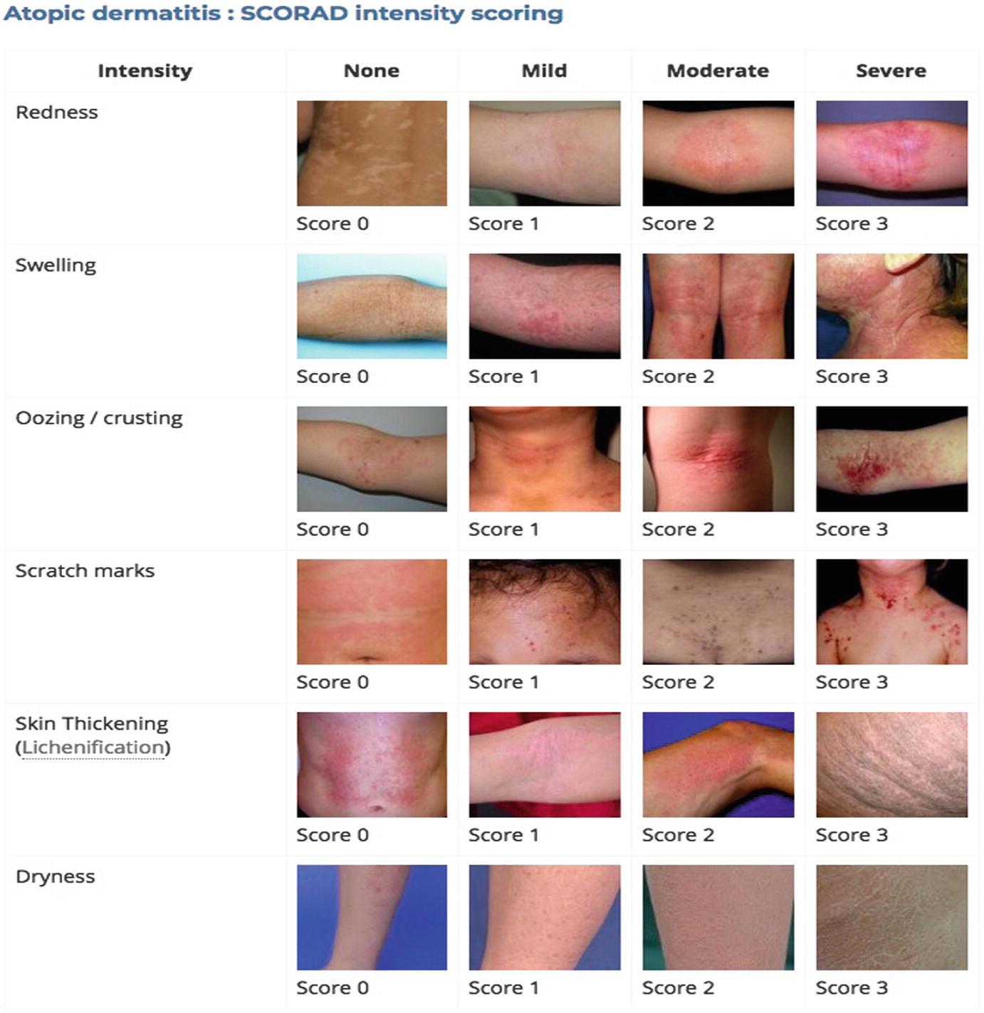 eczema chart