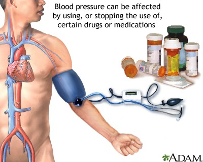 What Is High Blood Pressure and How Is It Treated