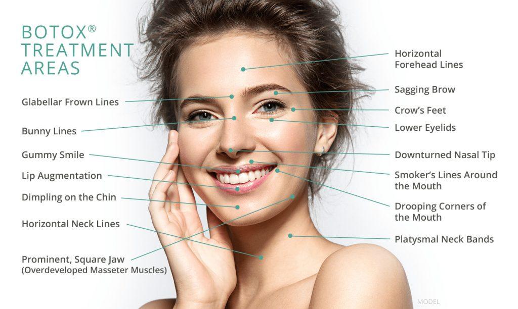 botox features