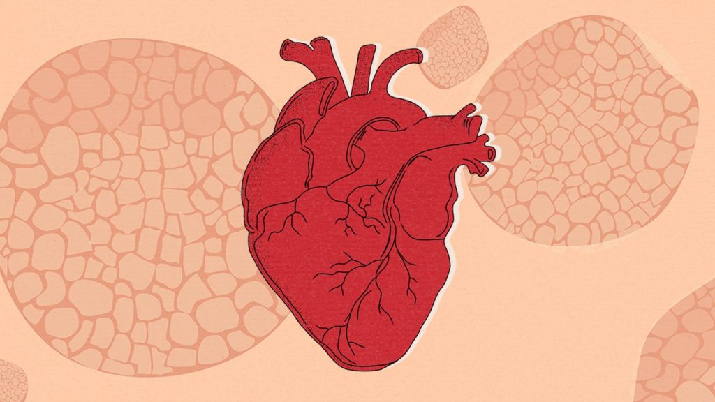 psoriasis and heart disease the hidden connection