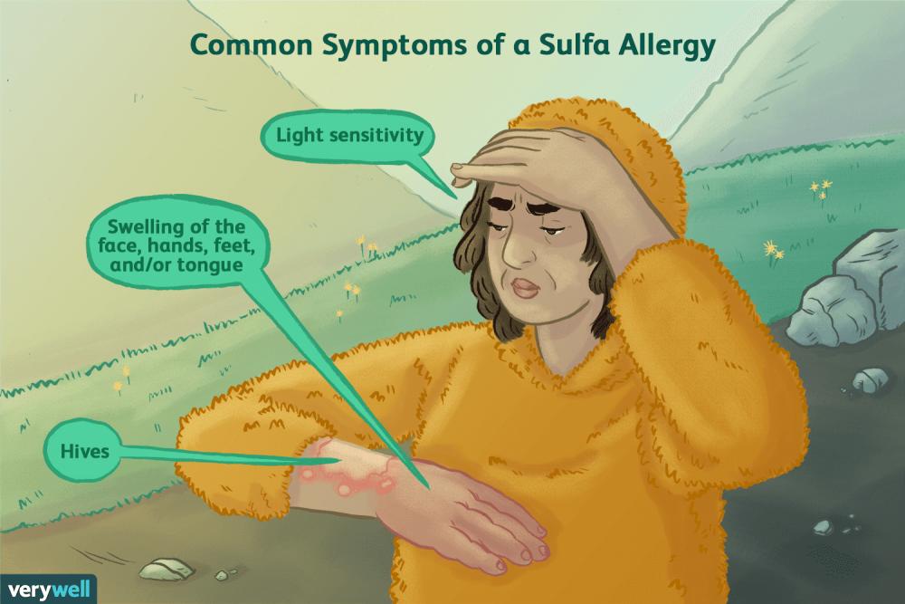sulfa drug allergy  fbbcbcbbcaaac
