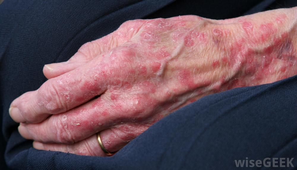 womans hand with blotchy skin rashes